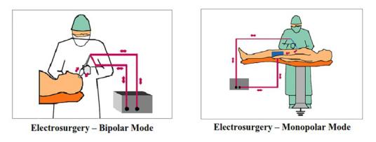 Electrosurgery- Bipolar mode -Monopolar Mode
